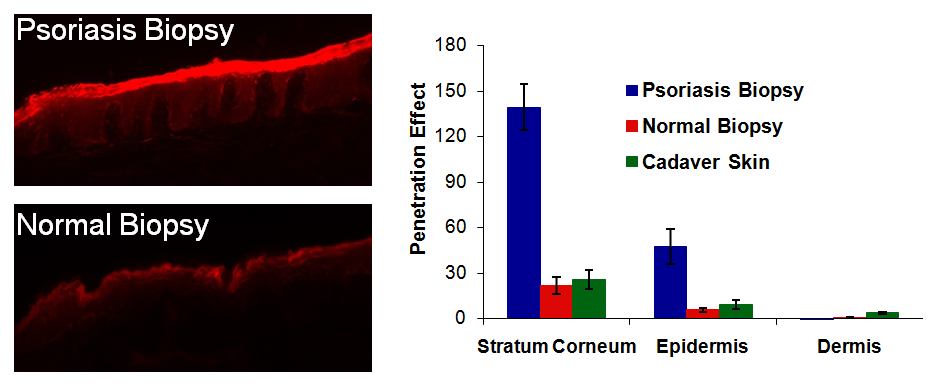 Figure 1. Skin distribution studies using hydrophobic, fluorescent model compound confirm that TyroSpheres deliver their payload to the basal layer of the epidermis, the target layer for treatment of psoriasis.