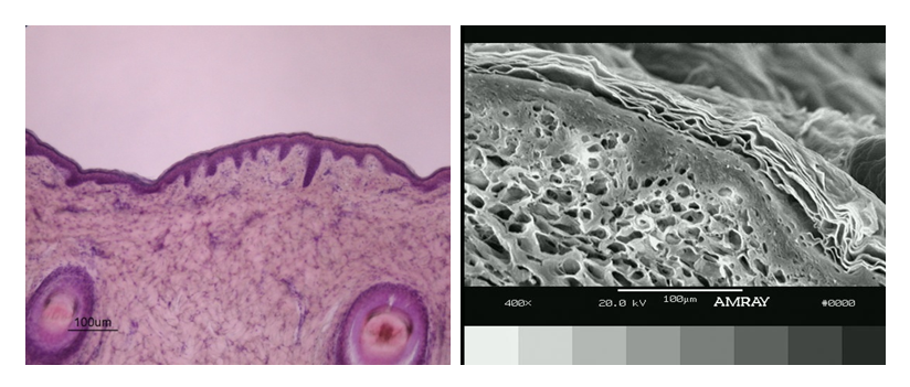 Figure 2. Cross-sectional pictures of porcine skin used in permeation studies (pretreated with C12E8 surfactant) obtained from histology-light microscopy (left) and SEM (right) studies. No significant morphological changes were observed in the skin, when compared to control samples.